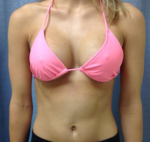 facia pics under Breast placement augmentation